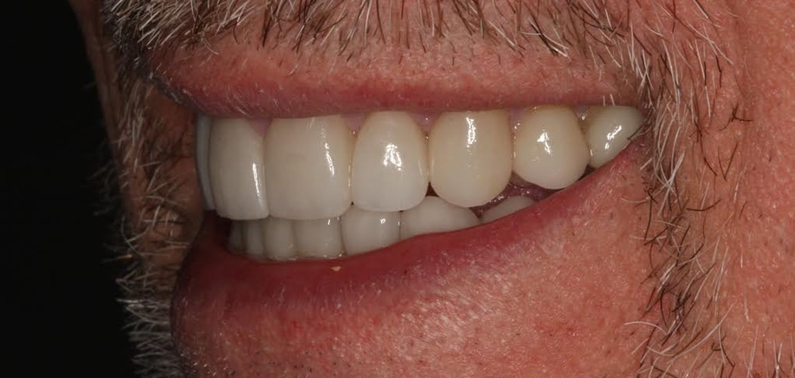 tooth reconstruction in park city utah