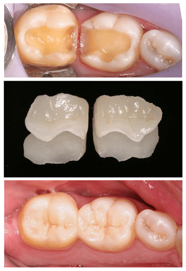 dental inlays and outlays Before and after in park city utah