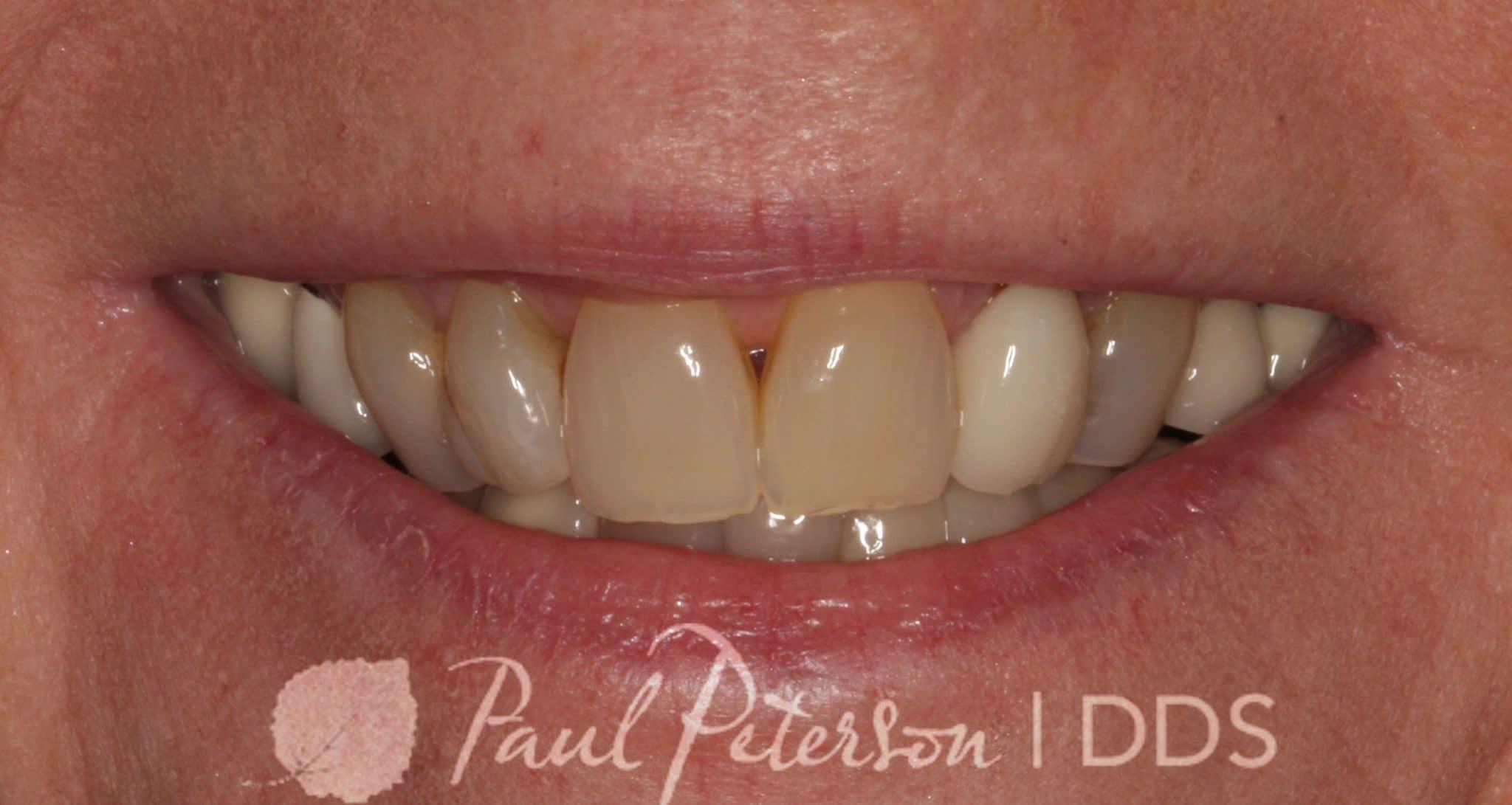 Before | Advanced Cosmetic Dentistry | Park City, Utah