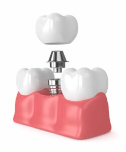 3d render of teeth with dental implant isolated over white background